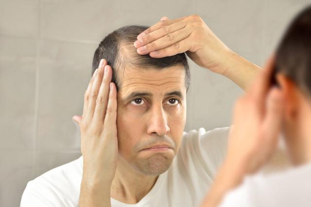 balding-and-greying001-thumb-720xauto.jpg